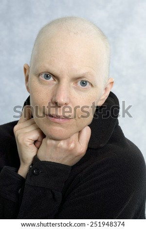Portrait of a female cancer patient after losing most of her hair from the chemotherapy treatments. - stock photo