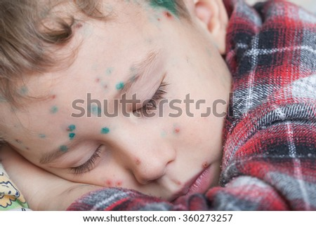 Portrait of a sleeping boy with chicken-box (green dots made with blakstonia or brilliant essence are used to distinguish between new and old pock-marks)