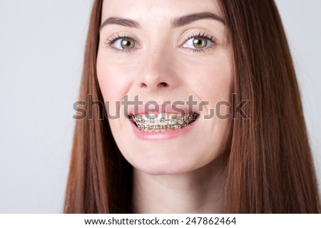 portrait of a smiling  woman with braces - stock photo