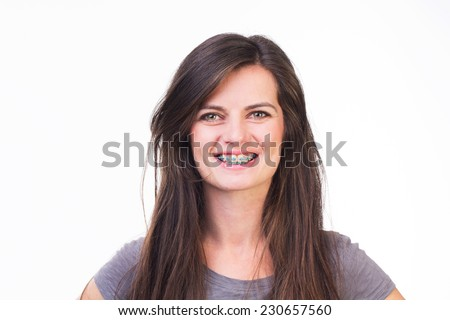 Portrait of a woman with braces smiling - isolated on white.