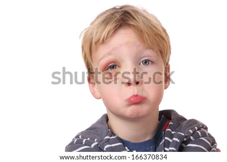 Portrait of a young boy with black eye on white background - stock photo