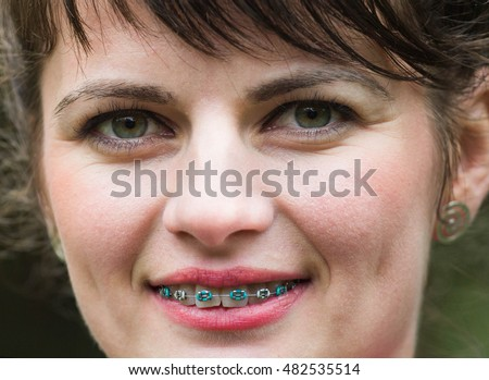 Portrait  of beautiful woman with braces smiling at camera