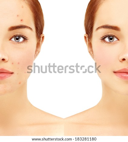 Portrait of beautiful woman with problem and clear skin, aging and youth concept, beauty treatment. - stock photo