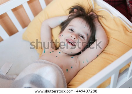 Portrait of boy with chicken pox lying in bed at home