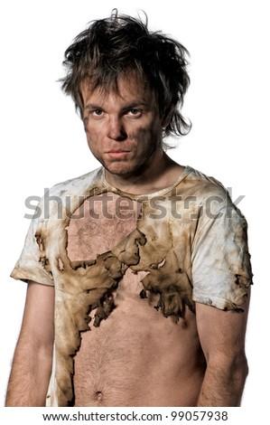 Portrait of burnt man over white background - stock photo
