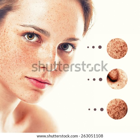 Portrait of girl woman with problem and clear skin, aging and youth concept  - stock photo