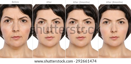 Portrait of middle aged woman before and after cosmetic surgeon in long term - 3 and 6 months after - stock photo