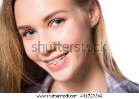 Portrait of teen girl showing dental braces. - stock photo