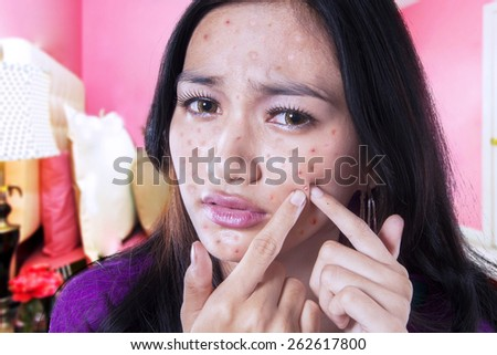 Portrait of unhappy teenage girl touching acne on her face in the bedroom at home - stock photo