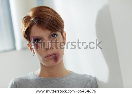 portrait of young caucasian woman being abused. Horizontal shape, front view, copy space