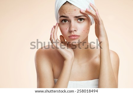 Portrait of young girl with chickenpox varicella zoster virus, with a sadness. Beautiful young Caucasian female model  - stock photo