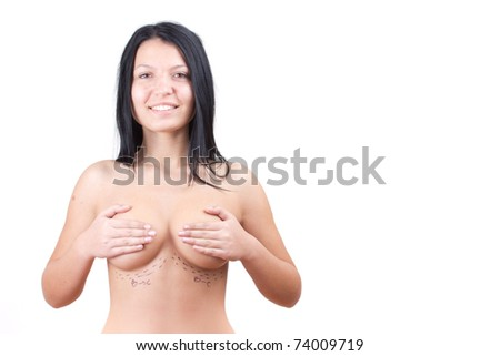 Portret  photo of a caucasian woman's abdomen marked with lines for abdominal cosmetic surgery - stock photo
