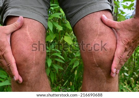 Post surgery scars, many years after knee reconstruction surgery - stock photo