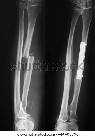 Pre and postoperative of radius fracture x-ray image