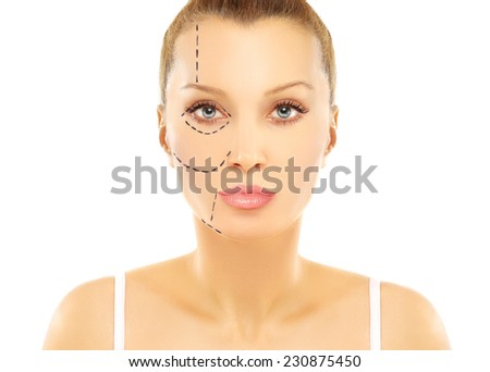 Pre-operative markings - stock photo