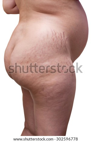 Pregnant woman showing Cellulite , bad skin - cracks on skin.ass