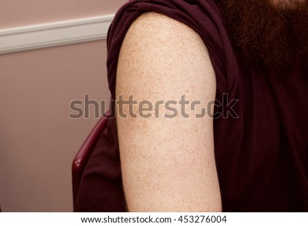 Preparing the Right Upper Arm for Intradermal Allergy Skin Test - stock photo