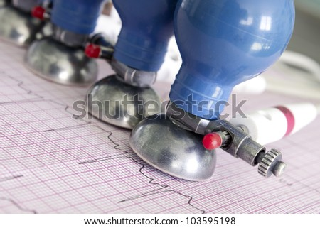 Printed electrocardiogram and  ECG electrodes. Symbolic photos. Medical background. - stock photo