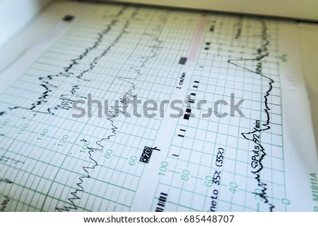 Printing of cardiogram report, cardiotocography (ctg), close-up