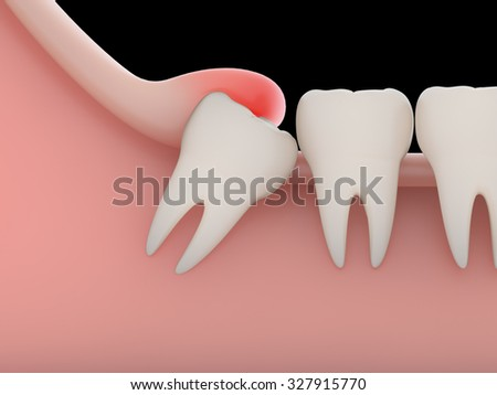 how to fix a wisdom tooth infection