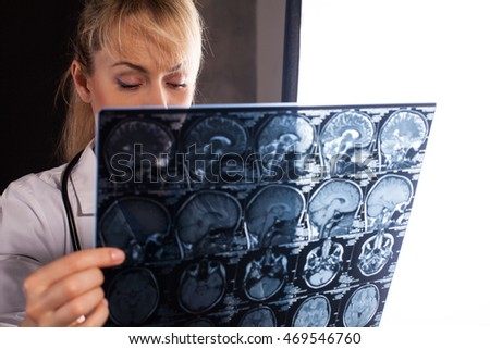 Professional young doctor woman in white labcoat holding mri of human brain and looking at it