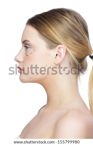Profile view of calm pretty blonde with dotted lines on the face before surgery
