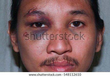 Puffy swollen eye on a Asian man - brow crack