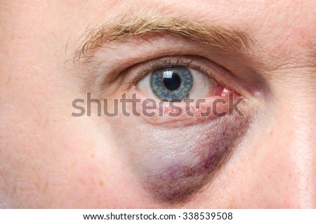 Puffy swollen eye on a white man - stock photo
