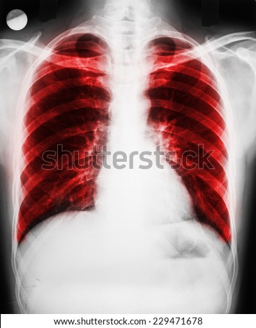 Pulmonary Disease On Patient Lungs X-Ray - stock photo