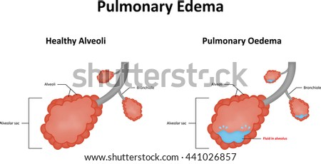 edema stock images, royalty-free images & vectors | shutterstock, Skeleton