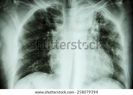 Pulmonary Tuberculosis .  Chest X-ray : interstitial infiltration at left upper lung due to Mycobacterium Tuberculosis infection - stock photo