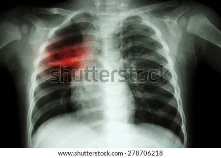 Pulmonary Tuberculosis ( Chest X-ray of child : show patchy infiltration at right middle lung ) - stock photo