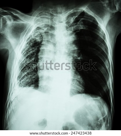Pulmonary Tuberculosis .   Chest X-Ray : Right lung atelectasis and infiltration and effusion  due to Mycobacterium Tuberculosis infection - stock photo