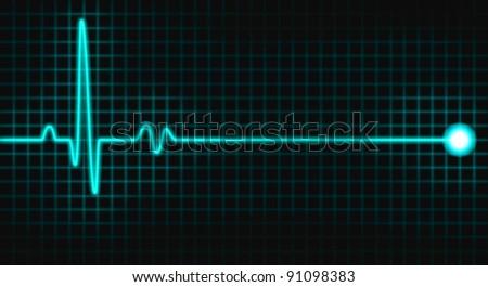 pulse graph on black grid  - stock photo