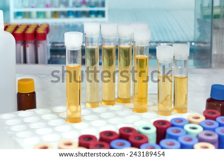 rack with several tubes with urinalysis and the background tubes for blood samples in the laboratory workbench / analysis of urine tubes in lab - stock photo