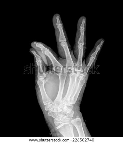 Radiography of the right hand making a gesture