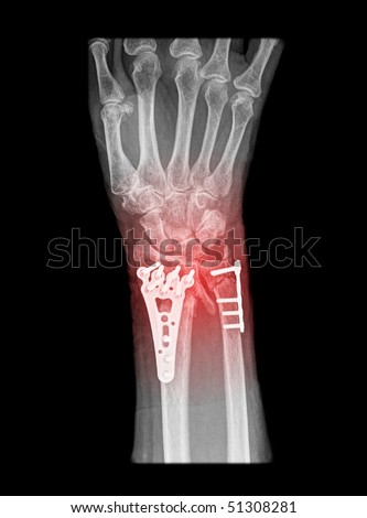 radius fracture surgery in elderly person - stock photo