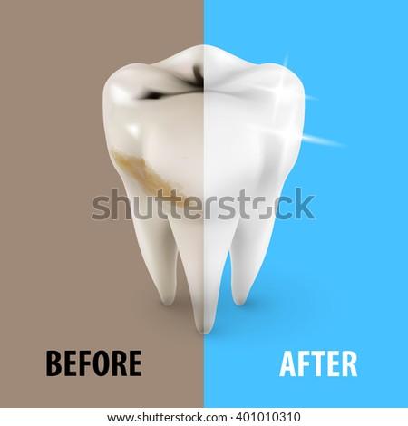 Raster version. Teeth Whitening Icon, Dentist Symbol in Isometric Style - stock photo