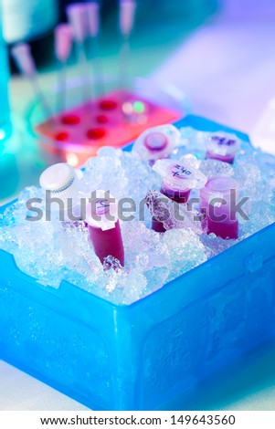 reaction plastic tube in a box full of ice - stock photo