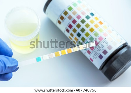 urinalysis stock images, royalty-free images & vectors | shutterstock, Skeleton