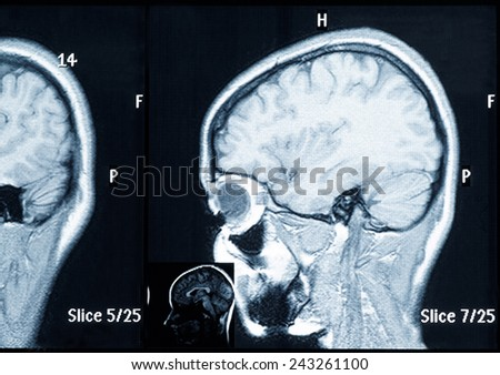 Real brain MRI slide of a young woman. Patient's and clinic's names removed - stock photo