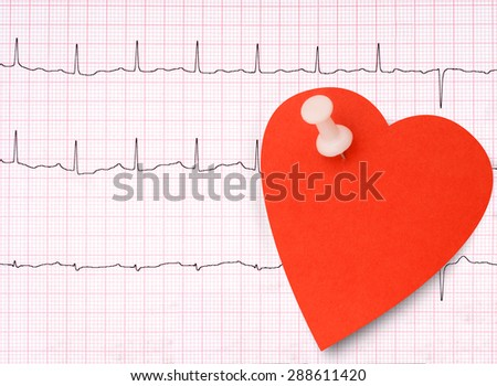 Real ECG, EKG detail made anonymous, with heart shape note for your healthy message. - stock photo