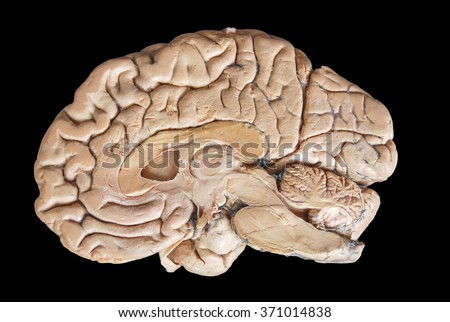 Real human half brain anatomy isolated on black background - stock photo