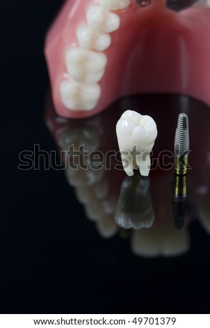 Real Human Wisdom tooth, Dental Implant and Plastic teeth model. Shallow depth of field - stock photo