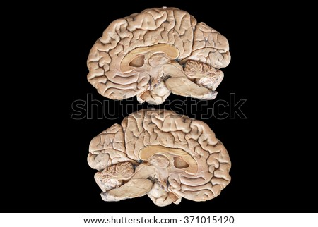 Real Two human half brain anatomy isolated on black background - stock photo