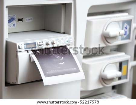 receiving an image from medical ultrasound system equipment - stock photo