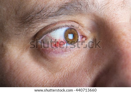 Red bloddshot eyes in a middle aged man - stock photo