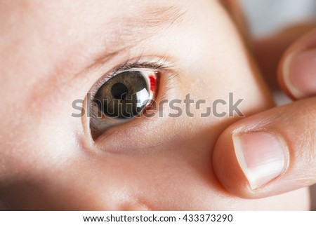 Red bloddshot eyes in a two months old baby - stock photo