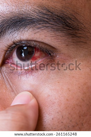 Red eye close up short. Medical and healthcare process. - stock photo