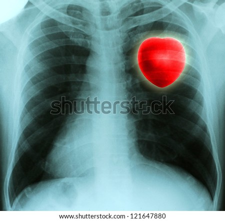 Red heart in thorax on x-ray film - stock photo